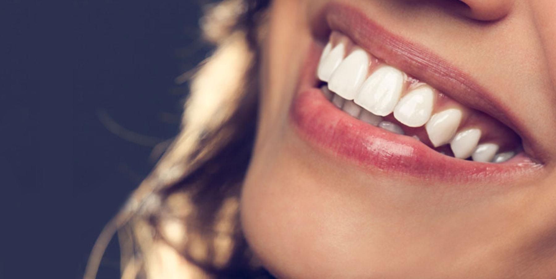 ابتسامة-اسنان-بيضاء
