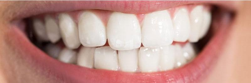تبييض اسنان بعد