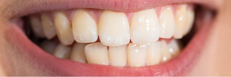 تبييض اسنان قبل