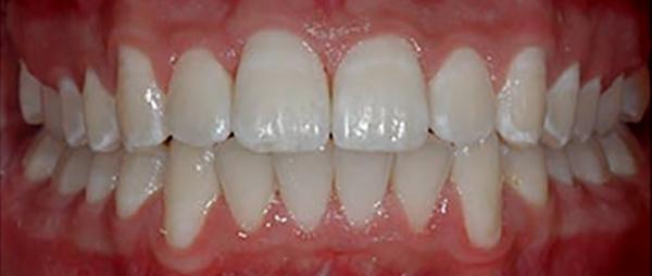 تقويم الاسنان بعد