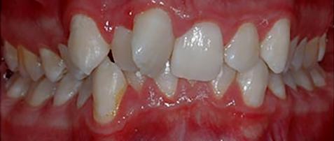 تقويم الاسنان قبل