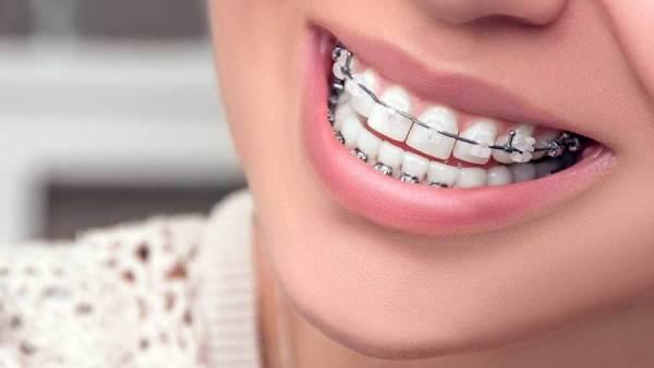 هل تبحث عن طبيب لقويم الاسنان؟