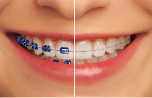 الوان تقويم الاسنان التي تجعل الاسنان تبدو أكثر بياضًا
