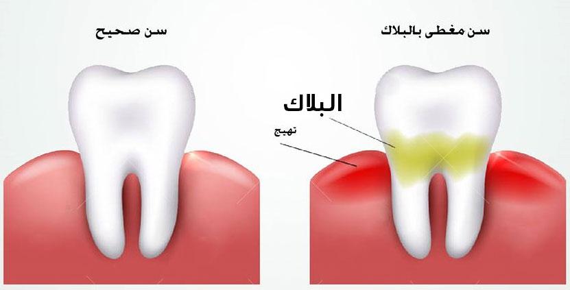 بلاك-الاسنان
