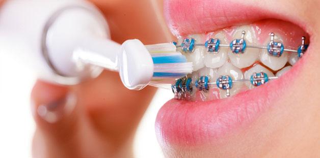 فرشاة الأسنان الكهربائية أقواسي (لمستخدمي تقويم الاسنان